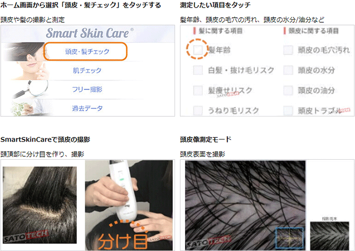 Smart Skin Care ヘアサロン用育毛カウンセリングのやり方1